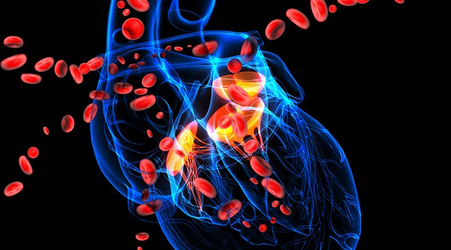 Major cardiovascular diseases