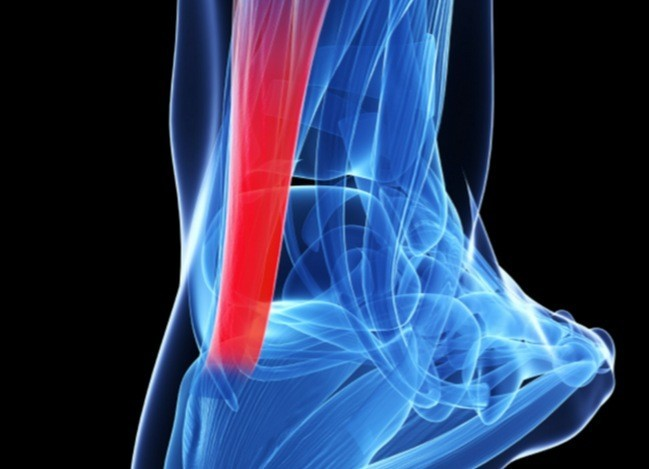 We can end the ghost of tendinitis if we know how